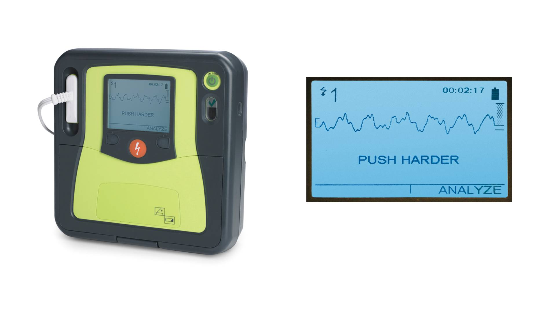 ZOLL AED Machine for heart attack CPR